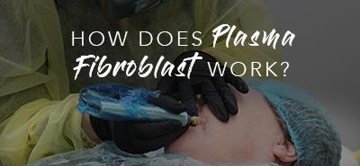 How Does Plasma Fibroblast Work?