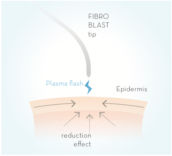 How Does Plasma Fibroblast Work